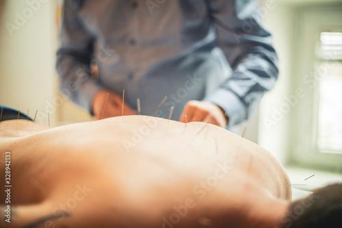 Photo man having acupuncture treatment .