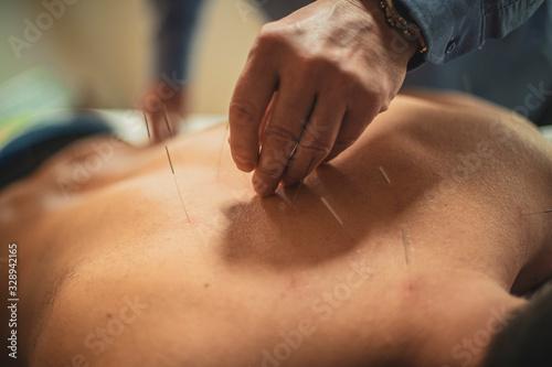 man having acupuncture treatment . Canvas Print