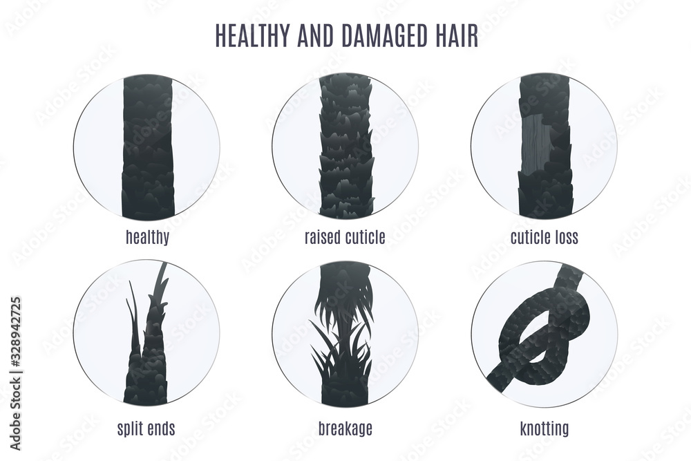Fototapeta Damaged hair surface under microscope. Hair follicle structure condition closeup vector set. Problem of split ends, breakage, knotting, raised cuticle and loss of cuticle. Trichology medical concept.