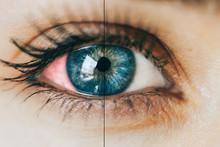 Sick Red Eye Conjunctivitis, T...