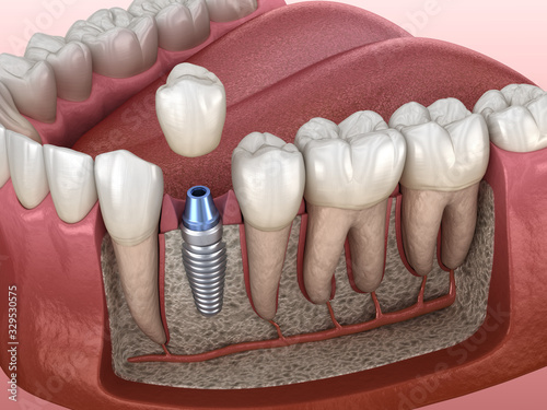 Carta da parati Premolar tooth crown installation over implant abutment