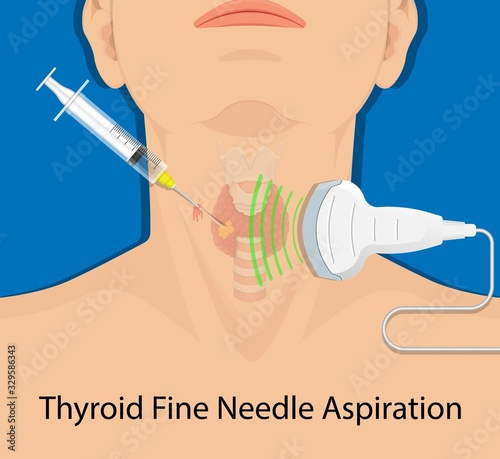 Obraz Thyroid cancer disease nodules ultrasound screening check medical treat fine needle aspiration lumps test lab gland neck pain Graves FNA FNAB Large Toxic diagnostic exam collect lymph nodes cell - fototapety do salonu