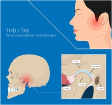 Temporomandibular Joint Disord...