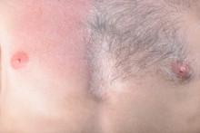 Male Depilation. Half Of Male ...