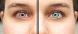 canvas print picture - Image collage comparing before and after closeup view of caucasian female red and healthy eye. Eye irritated by infection of eyeball. Healthcare and eyecare concept...