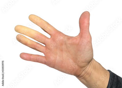 Hand with Raynaud's syndrome, Raynaud's phenomenon or Raynaud's  diseases Fototapete