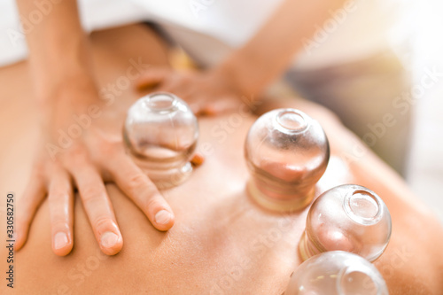 Stampa su Tela Detail of a woman therapist hands giving cupping treatment on back