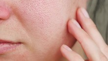 Macro Skin With Enlarged Pores...