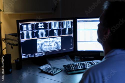 Cuadros en Lienzo Lecture radiographie sur écran par médecin radiologue bureau sombre