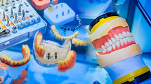 Dentistry. Layouts Of Jaws On The Doctor's Desktop. Dental Care. Elimination Of Problems With Teeth. Denture. Correction Of Bite. Visual AIDS For Teaching Students.