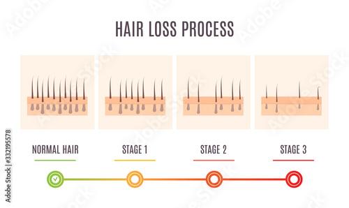 Fényképezés Hair loss process infographic of scalp close up with receding hair follicles