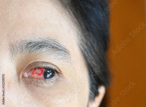 Asian women have red eyes on the left side of the eye Wallpaper Mural