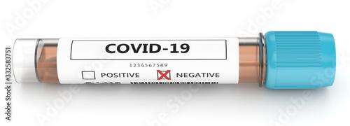 3d render of covid-19 negative nasal swab laboratory test Wallpaper Mural