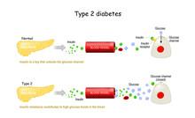 Types 2 Of Diabetes Mellitus. ...