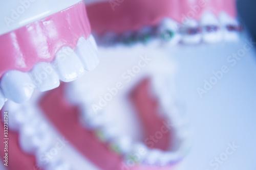 Model denture with metal orthodontics Canvas Print