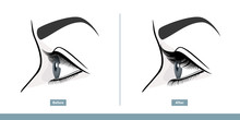 Female Eye Before And After Ey...