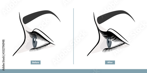 Fotografia, Obraz Female Eye Before and After Eyelash Extension