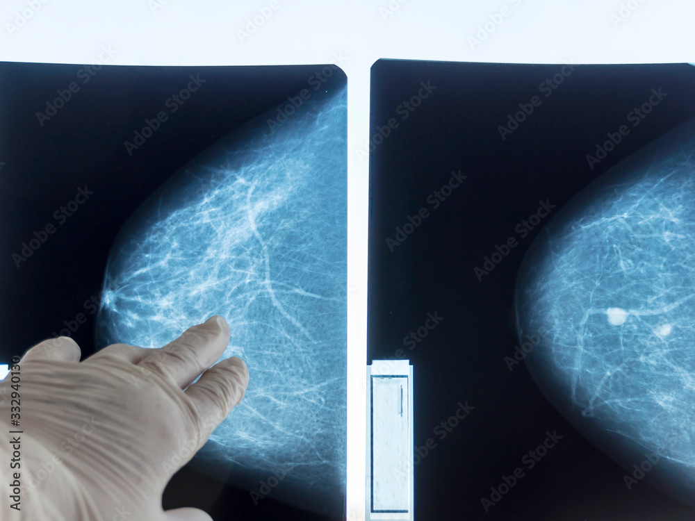 Fototapeta Mammography. The doctor's hand holding the pictures. The doctor examines the pictures in the patient's room.