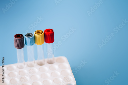empty test tubes with colorful caps in a tray on a blue background Wallpaper Mural