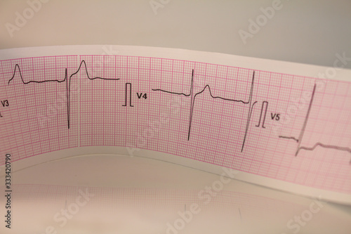 Photo Electrocardiogram strip with heartbeat represented on paper