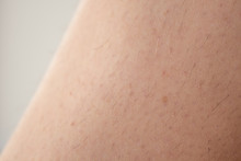 Unshaven, Hairy Legs Of A Wom...
