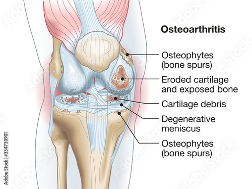 Photo Osteoarthritis of the knee, medical accurate illustration
