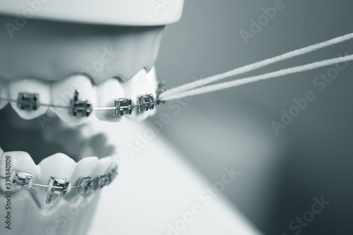 Model denture with metal orthodontics Wallpaper Mural