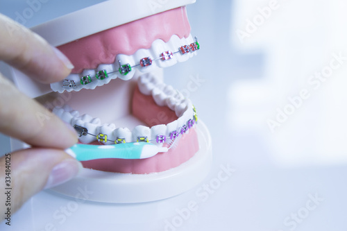 Photo Model denture with metal orthodontics