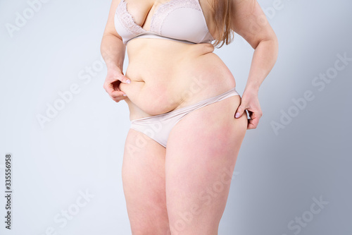 Fototapeta Tummy tuck, flabby skin on a fat belly, plastic surgery concept obraz na płótnie