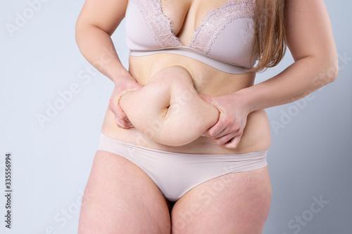 Tummy tuck, flabby skin on a fat belly, plastic surgery concept Billede på lærred