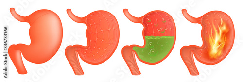 Vector Medical illustration of realistic stomach outside and inside Wallpaper Mural