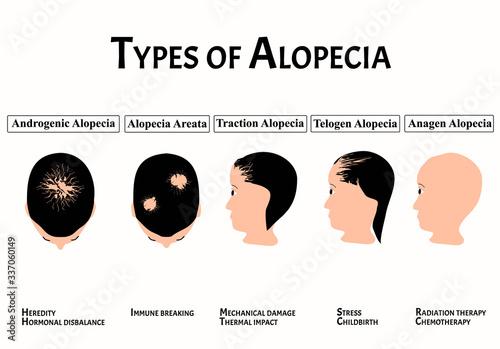 Types of alopecia Canvas Print