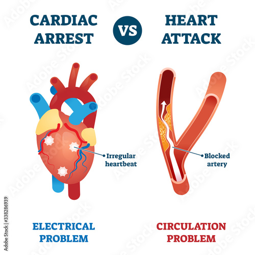 Carta da parati Cardiac arrest vs heart attack vector illustration