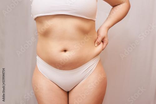 Obraz na plátne Fat unhealthy woman body