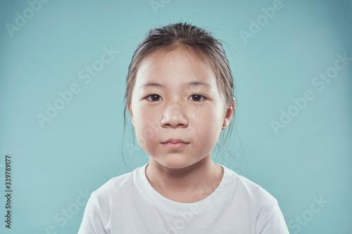 Obraz Portrait of melancholy sad crying little asian girl. - fototapety do salonu