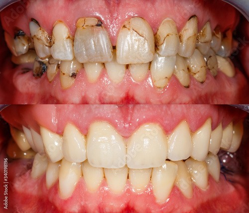 Photo Teeth before and after treatment