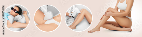 Photo Hair remove using medical laser, procedure body epilation