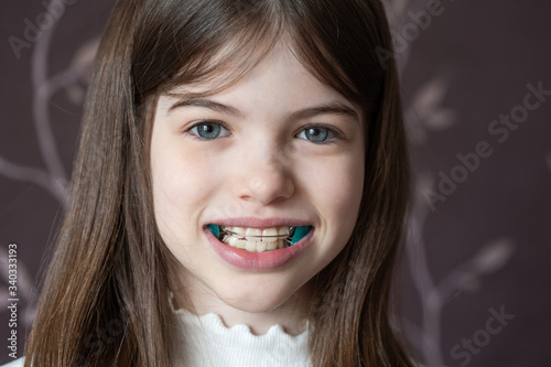 Photo Little girl shows orthodontic apparatus in the mouth, malocclusion, pediatric or