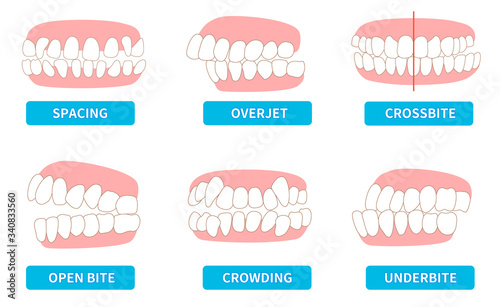 Photo List of dentitions that require treatment: crowding, opposite occlusion, open b