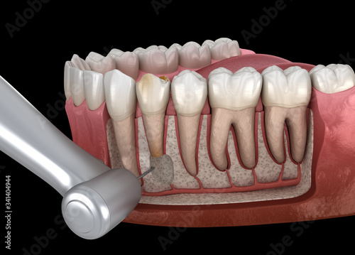 Fotografija Tooth Cystectomy Surgery - recovery after Periostitis
