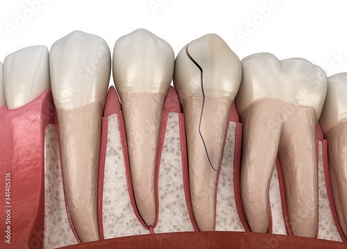Valokuva Cracked tooth, splitted. Medically accurate 3D illustration