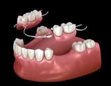 Removable Partial Denture, Mandibular Prosthesis. Medically Accurate 3D Illustration Of Prosthodontics Concept