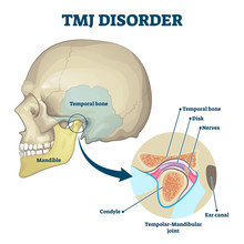 TMJ Disorder Vector Illustration. Labeled Jaw Condition Educational Scheme.