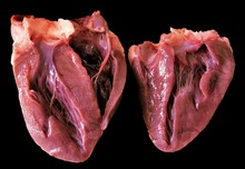 A Heart Sectioned In Two