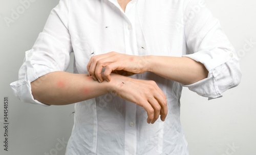 Fototapeta A person itches after mosquito bites. obraz