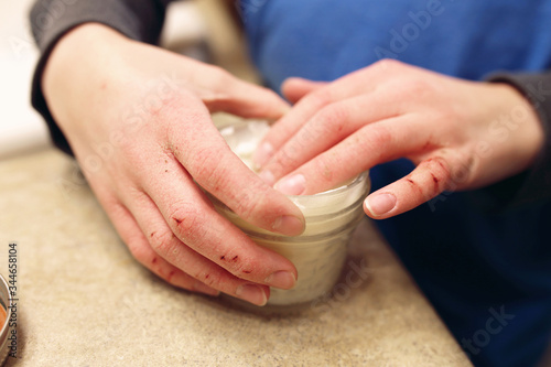 Photo Child Applying Moisturizing Lotion to his Severely Cracked and Dry Skin on Hands