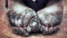 Close-up Of Dirty Feet