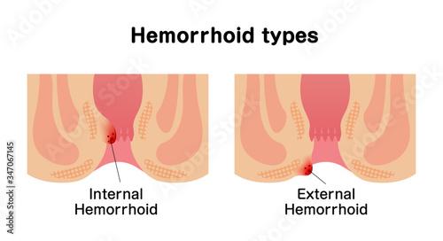 Types of Hemorrhoid flat vector illustration Canvas Print