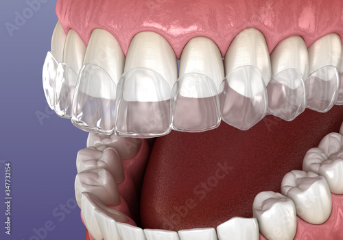 Fototapeta Invisalign braces or invisible retainer. Medically accurate dental 3D illustration obraz