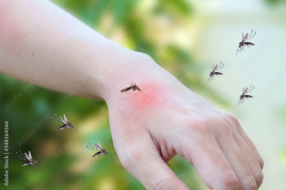 Fototapeta Mosquitoes bite on adult hand made skin rash and allergy with red spot